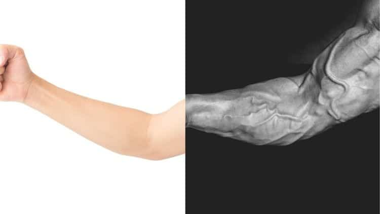 A forearm before and after transformation