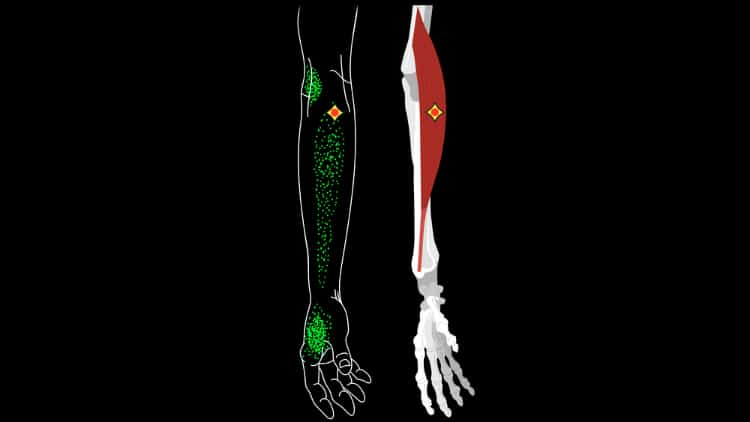 Illustration showing various forearm trigger points