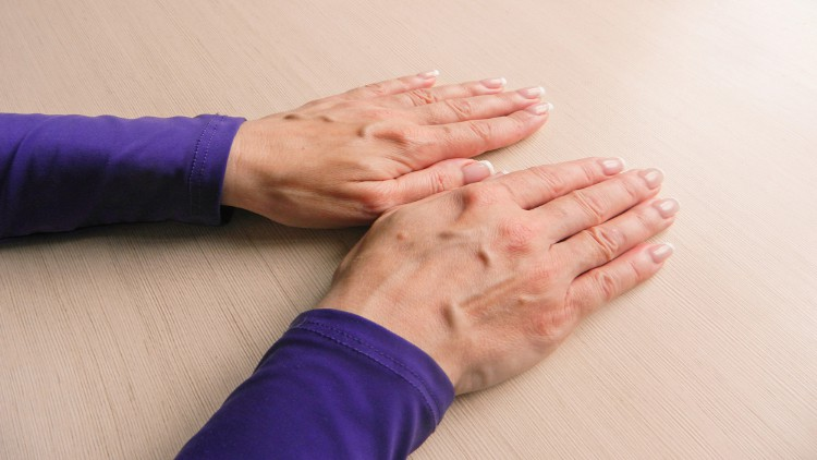 Woman with her palms down