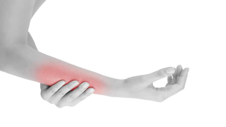 Woman with a strained forearm muscle