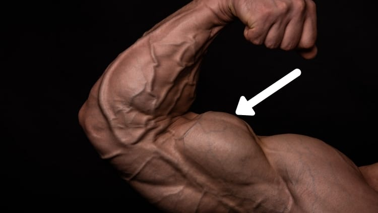 The long head of the biceps brachii muscle