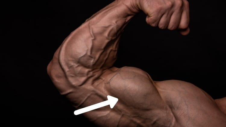 The short head of the biceps brachii muscle